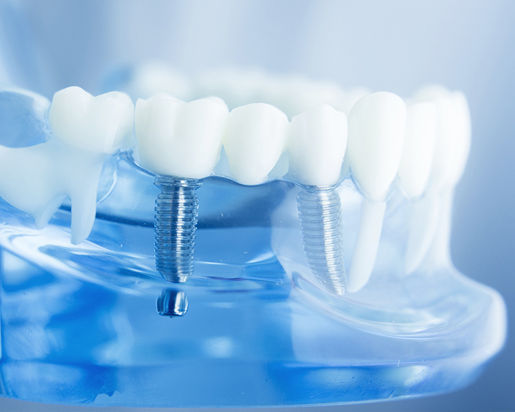 Implants Image photo