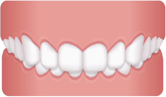 歯並びを治したい