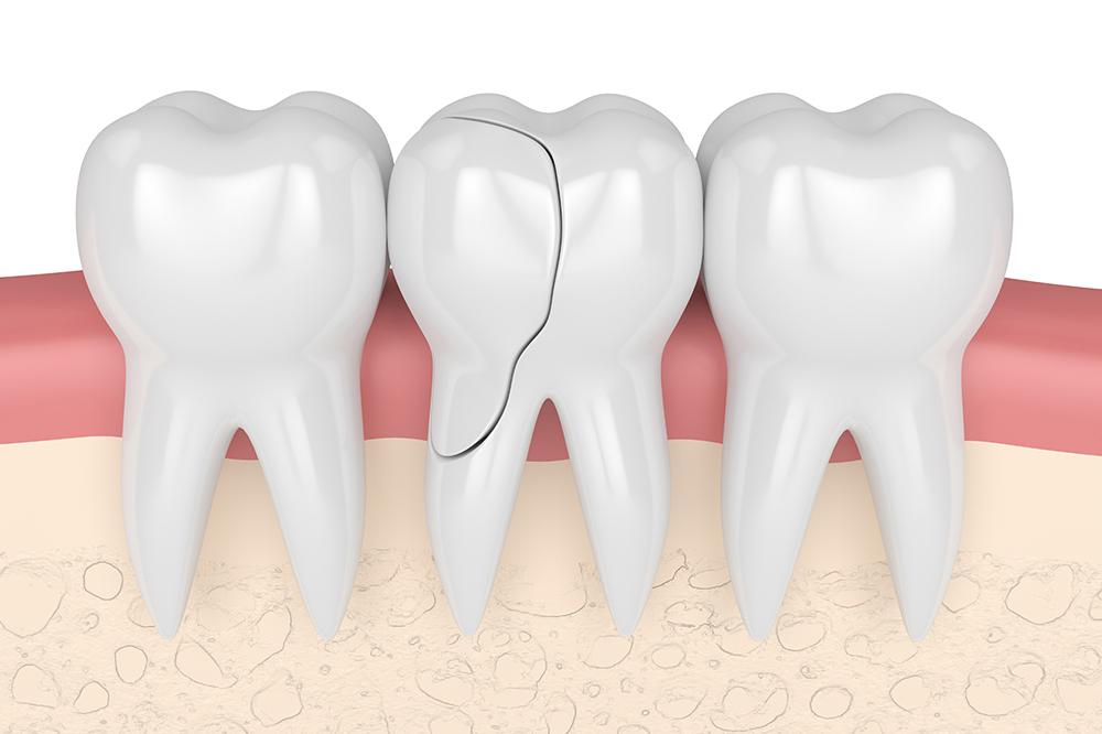 歯が欠ける・抜ける