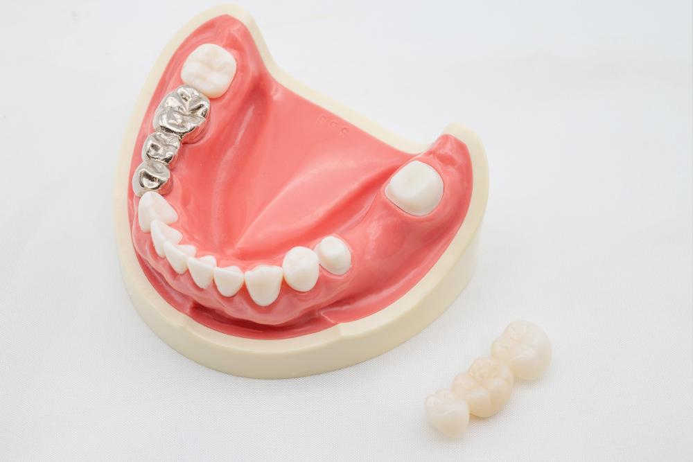 銀歯を交換したい